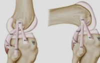 Infografia-incluyendo-el-nuevo-ligamento-descubierto-ALL