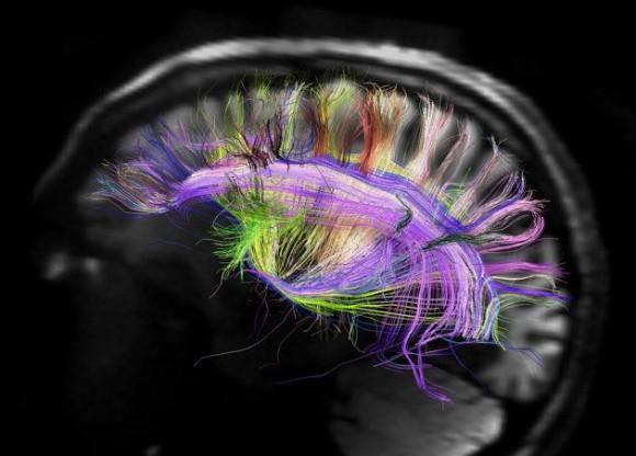 Nuestro cerebro utiliza el sueño para organizar la memoria