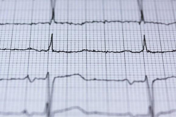 Un algoritmo de aprendizaje profundo detecta anomalías cardíacas con más exactitud que seis médicos expertos en cardiología | Imagen Pixaby
