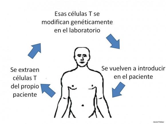 Terapia con células T